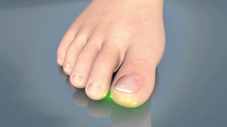 fungo : This video shows the Onychomicosis of the toenail Vídeos