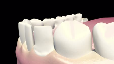 furnér : This video shows the dental veneers Stock mozgókép