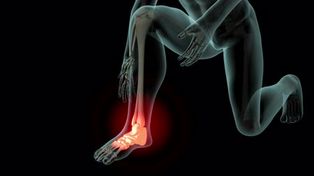 ortopedia : This video shows a man suffering from Ankle pain Wideo