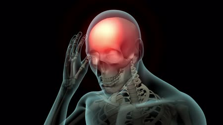ortopedia : This video shows the Head Pain condition Wideo