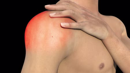 ortopedia : This video shows the shoulder pain condition Wideo
