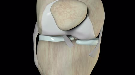 колено : This video shows the anterior cruciate ligament rupture