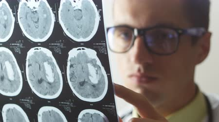 prescribe : Close up of Doctor examines a snapshot of magnetic resonance imaging