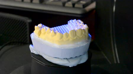 gips : 3D Scanning a model of human teeth from gypsum close-up. Creation 3D model for sculpted plastic denture in medical laboratory. Modern high tech digital scanning dental equipment prosthetic restoration Wideo