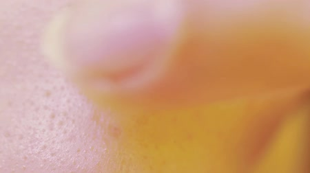 the inflammation : Pimple on the skin close-up and lubrication pimple cream for acne. Macro video