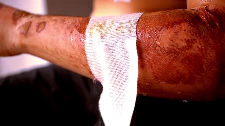 rana : Close up of cleaning wounds and removing the bandage used. Extreme macro video