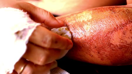 drží se za ruce : Close up of cleaning wounds and removing the bandage used. Extreme macro video