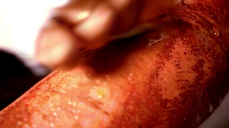 baleset : Close up of cleaning wounds burns and abrasions on mans arm . Extreme macro video