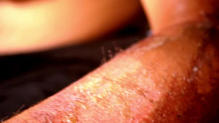 исцелять : Close up of lubrication wound healing cream. Extreme macro video Стоковые видеозаписи