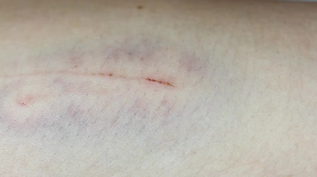 rana : wound on the skin. macro close up Wideo