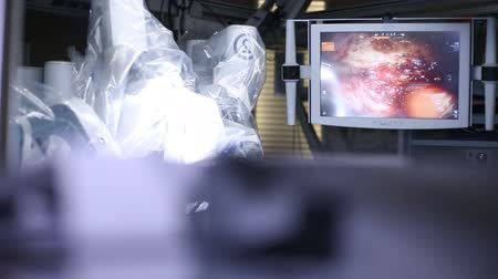 chirurgia : Medical robot da Vinci. Medical operation involving robot. Robotic Surgery. Wideo