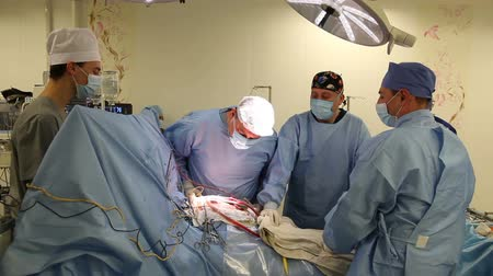 coronary : Surgeons team at operation. Heart surgery. Works in surgery. Stock Footage