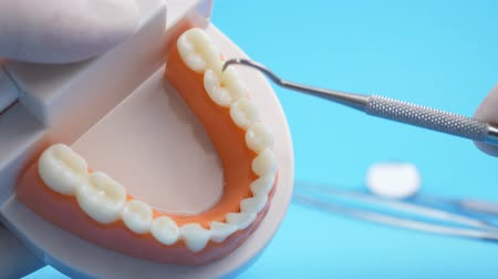 aço inoxidável : Doctor examining teaching model of gums and teeth for dentist by dental hook with cleaning tools on back blue background Stock Footage