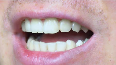šklebící : Teeth close-up, chipped teeth