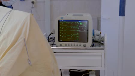 ecg : The monitor is located in the operating room, shows the patients condition at the time of surgery Stock Footage