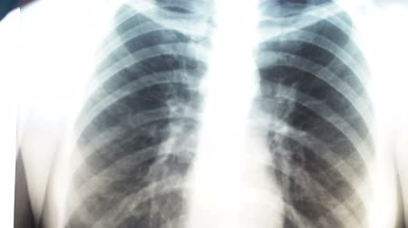 asthma : X-ray of human lungs.Diagnostics for prevention of lung cancer.