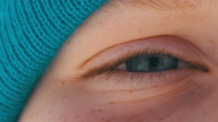 freckles : Teenager boy with an unusual color of turquoise eyes and freckles on his face in a blue hat looks on camera close up