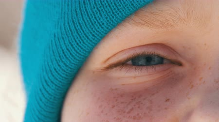 globo ocular : A handsome teenager boy with unusual turquoise eyes, lots of freckles on his face and a cap in the tone of his eyes, looks directly into the camera