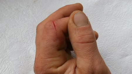 sangrento : Deep cut on finger of men. Blood wound in phalanx Vídeos