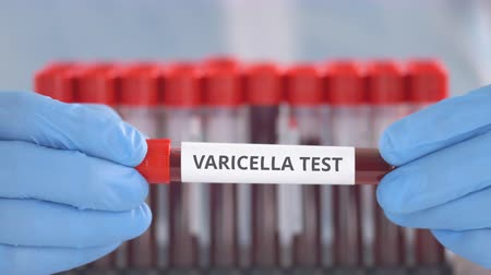 Laboratory assistant wearing protection gloves holds vial with varicella test