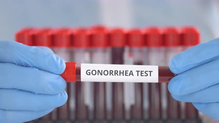 gonorréia : Laboratory assistant wearing protection gloves holds vial with gonorrhea test