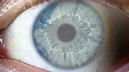 wzrok : Clouds are reflected in the human eye Wideo