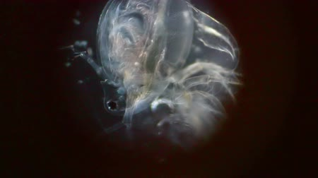 lyme disease : Kind of crustacean limbs stir in the microscope