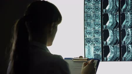 prescribe : Female surgeon looking at x-ray and writing down diagnosis, patients treatment Stock Footage