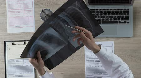 health insurance : Pulmonologist carefully examining patients lungs X-ray, noting suspicious areas