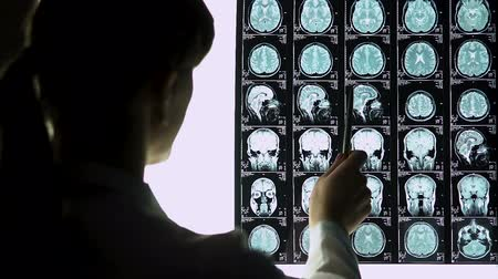radiation therapy : Young neurosurgeon calculating degree of patients brain concussion on MRI scans