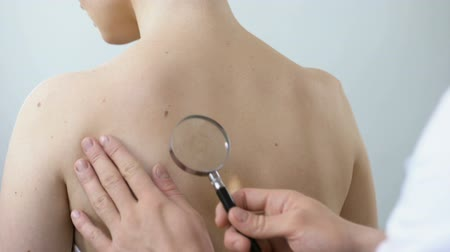 examinar : Physician examining birthmark with magnifying glass, diagnosis of skin cancer