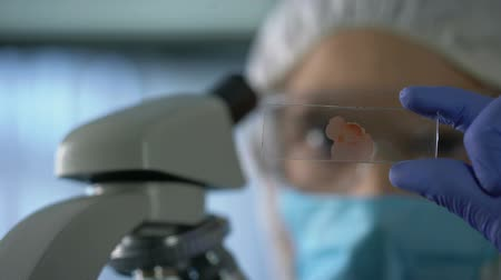 aids : Lab assistant looking at microscope slide with blood, genetic research, closeup