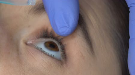 glaucoma : Ophthalmologist dripping treatment drops in patient eye conjunctivitis, glaucoma