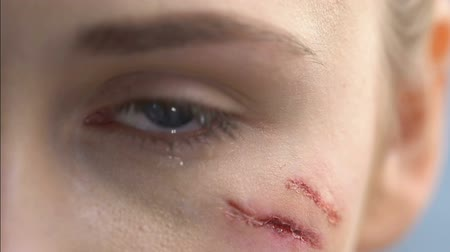first person : Injured crying woman with wound on face close-up, domestic violence, first aid.