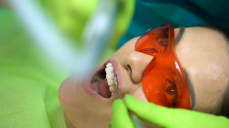 stomatologist : Dentist polishing just placed sealant, cosmetic dentistry for chipped tooth Stock Footage