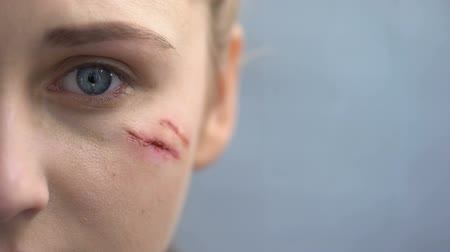 cicatrici : Defenseless female with scars on her face looking into camera, domestic violence