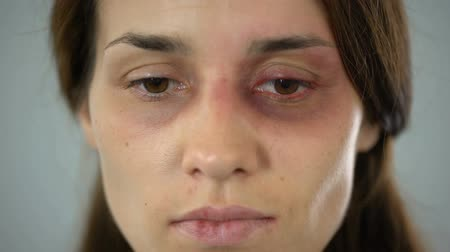 batido : Woman with bruise on face sadly looking at camera, victim of assault in family Stock Footage