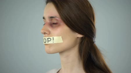солидарность : Stop tape on lips of young bruised woman, helpless victim of violence in family Стоковые видеозаписи