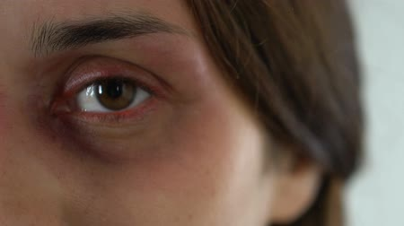cruelty : Bruised sad woman eye, terrified face of domestic violence victim close-up Stock Footage