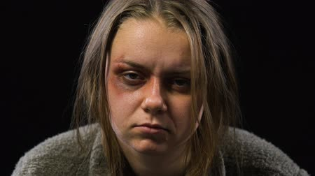 forced : Bruised woman looking into camera with empty and indifferent look, family abuse Stock Footage