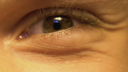 glaucoma : Young person having poor vision, squinting eyes, ophthalmology, extreme close-up Stock Footage