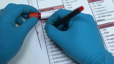 transmitted : CMV, doctor checking virus in lab blank, showing blood sample in tube Stock Footage