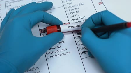 zabránit : Coagulation, doctor checking name in lab blank, showing blood sample in tube
