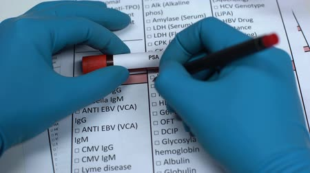 prostata : PSA, doctor checking antigene name in lab blank, showing blood sample in tube
