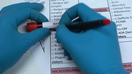 madárinfluenza : Bird flu, doctor checking disease in lab blank, showing blood sample in tube