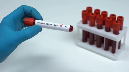 prostata : Negative prostate cancer, doctor showing blood sample, lab research, healthcare