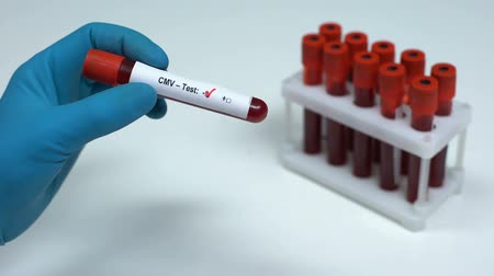transmitted : Negative CMV test, doctor showing blood sample, lab research, health check-up
