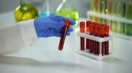 aids : Biochemist checking blood serum reaction in test sample, health check-up