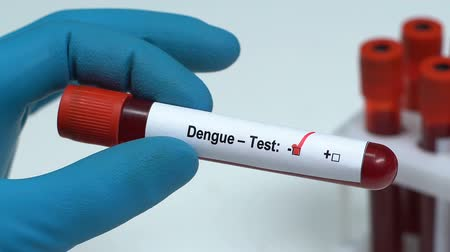 hastane : Dengue-test, doctor holding blood sample in tube close-up, health check-up