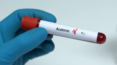 immuniteit : Acetone, doctor holding blood sample in tube close-up, health examination Stockvideo